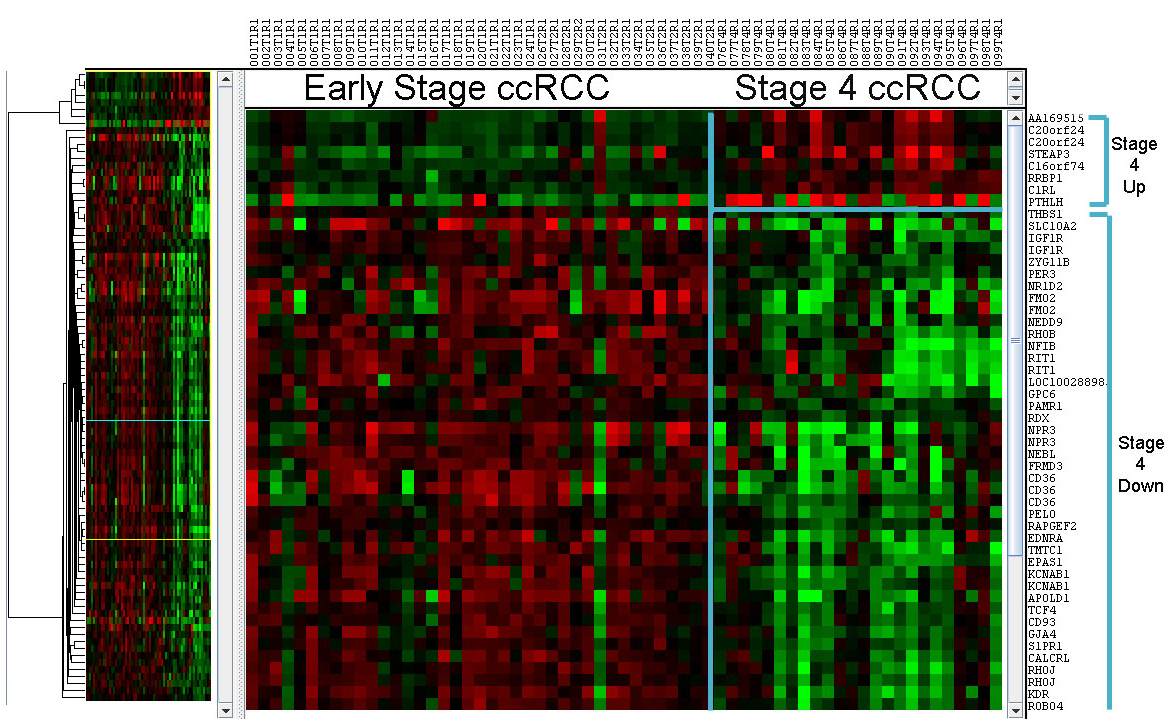 Differentially expressed genes in clear cell renal cell carcinoma (ccRCC),  early stage vs. late stage.  Red - upregulated, green - downregulated.