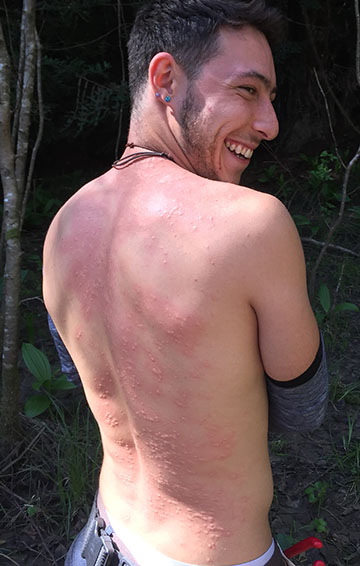 Herbalist Max Mulitz with 30 nettle lashes.