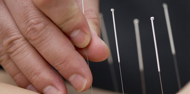 Acupuncture (2).jpg