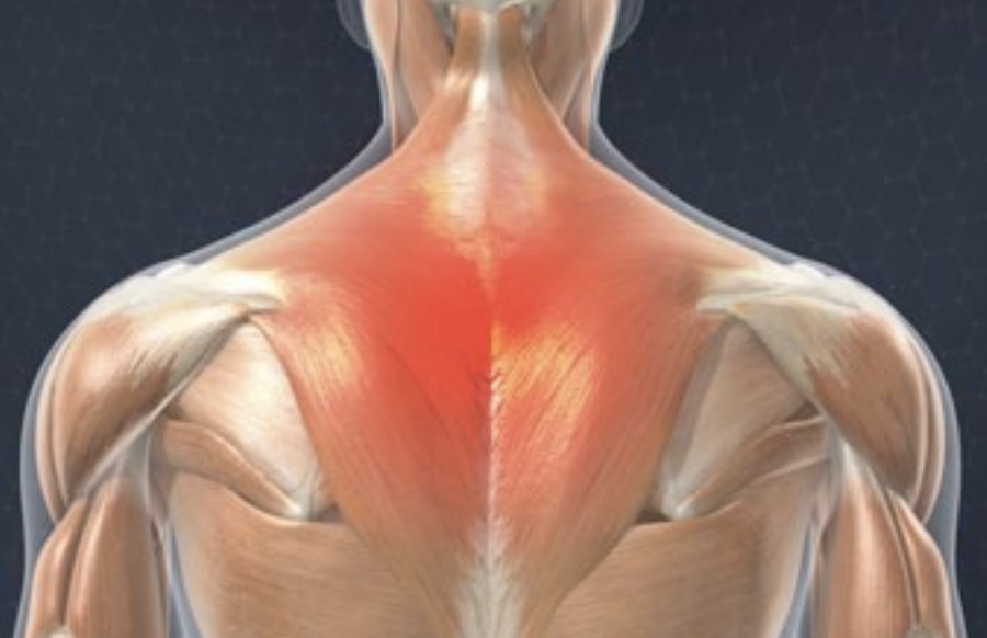 Upper Back Muscle Strain