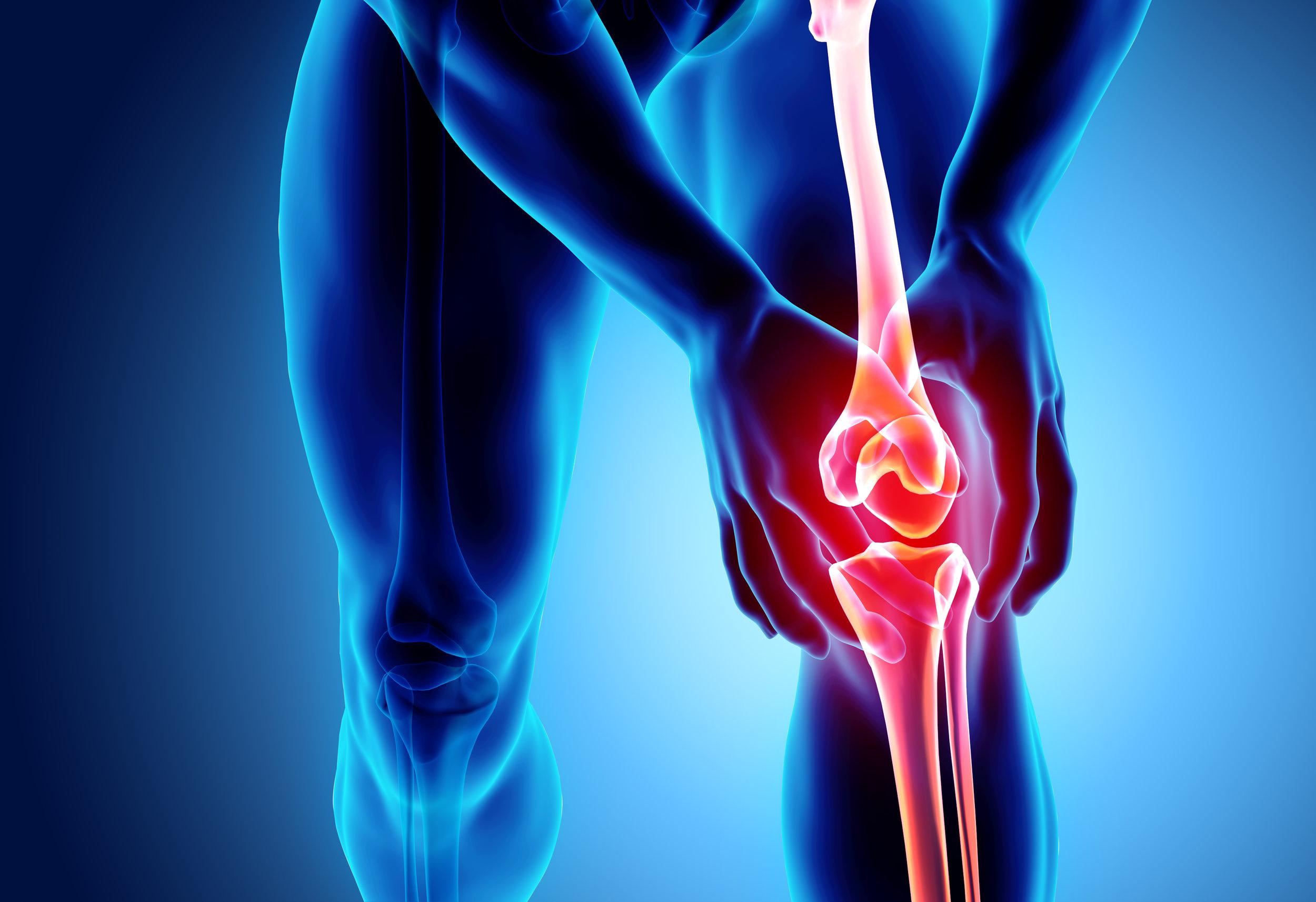 runners-knee-nyc