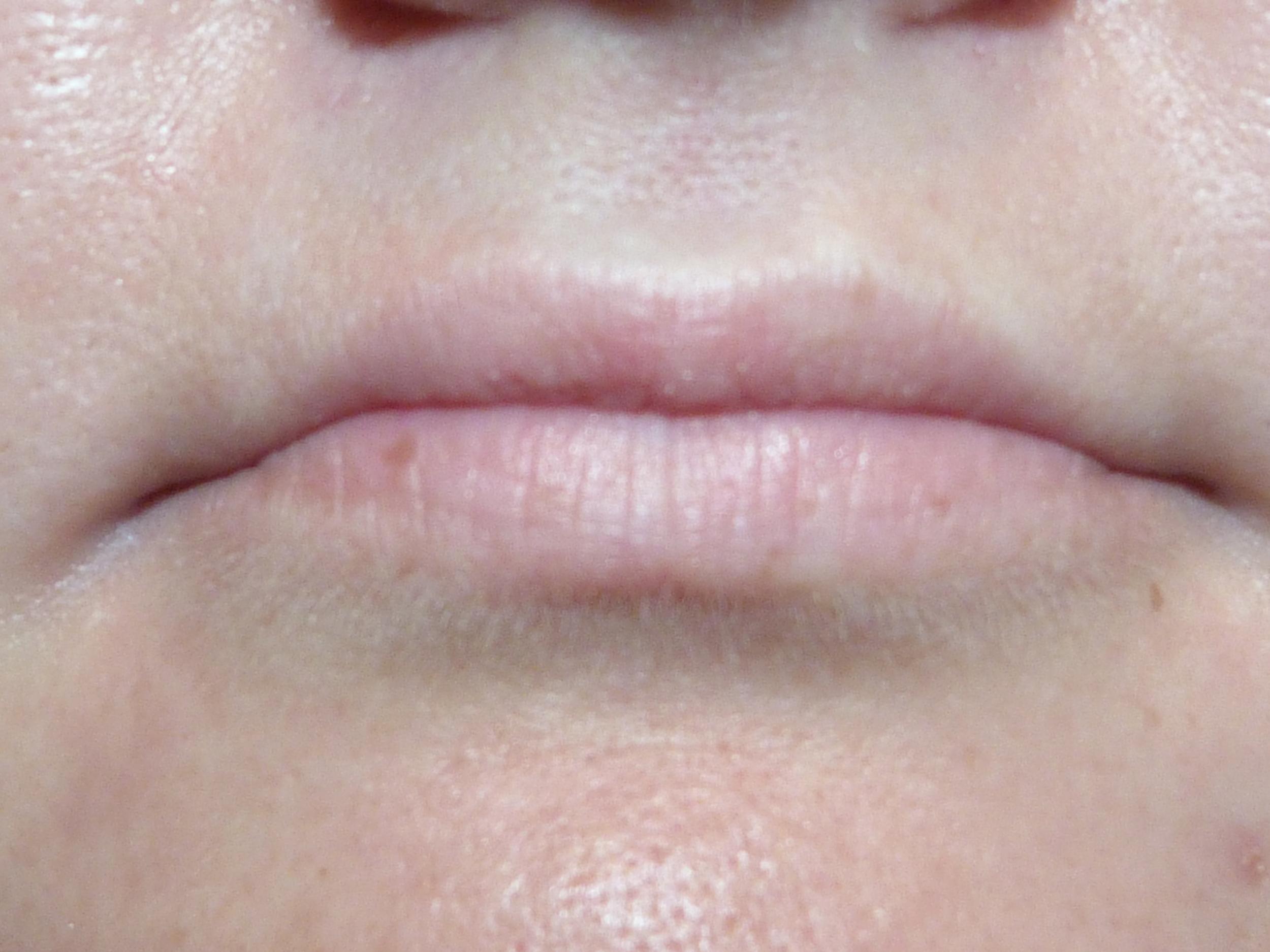 Full lip natural Blush before .JPG