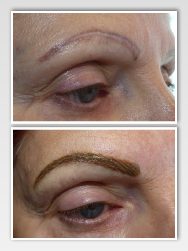 Client presented with previously tattooed eyebrows. They were asymmetrical, had turned purple and were done using incorrect technique and poor color selection. The faded result left the borders strong and the middle blank with a purple hue to the color.