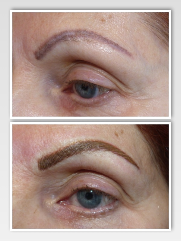 2 sessions of color removal were necessary to allow for adjustment of the shape.