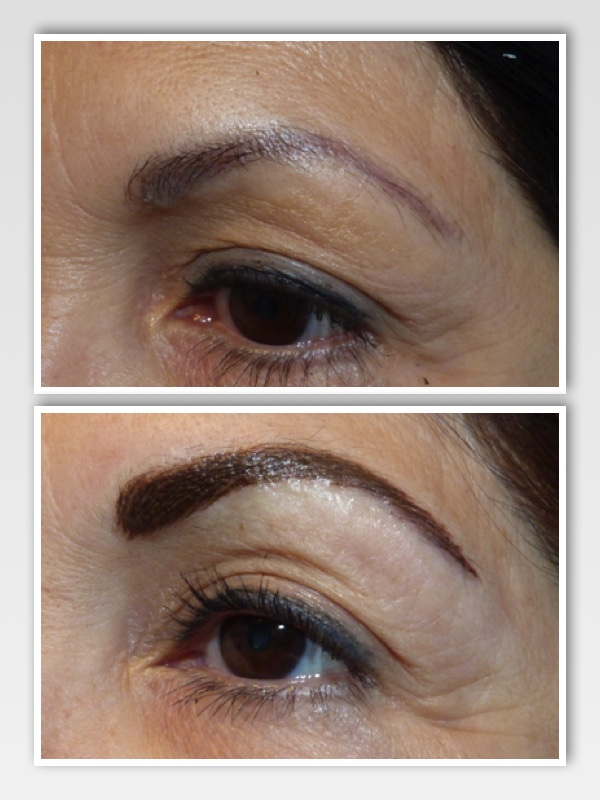 Due to the amount of fading and the thin design, we were able to use the appropriate color for her skin tone, and simply re-design and recreate natural looking brows with a hair stroke technique.