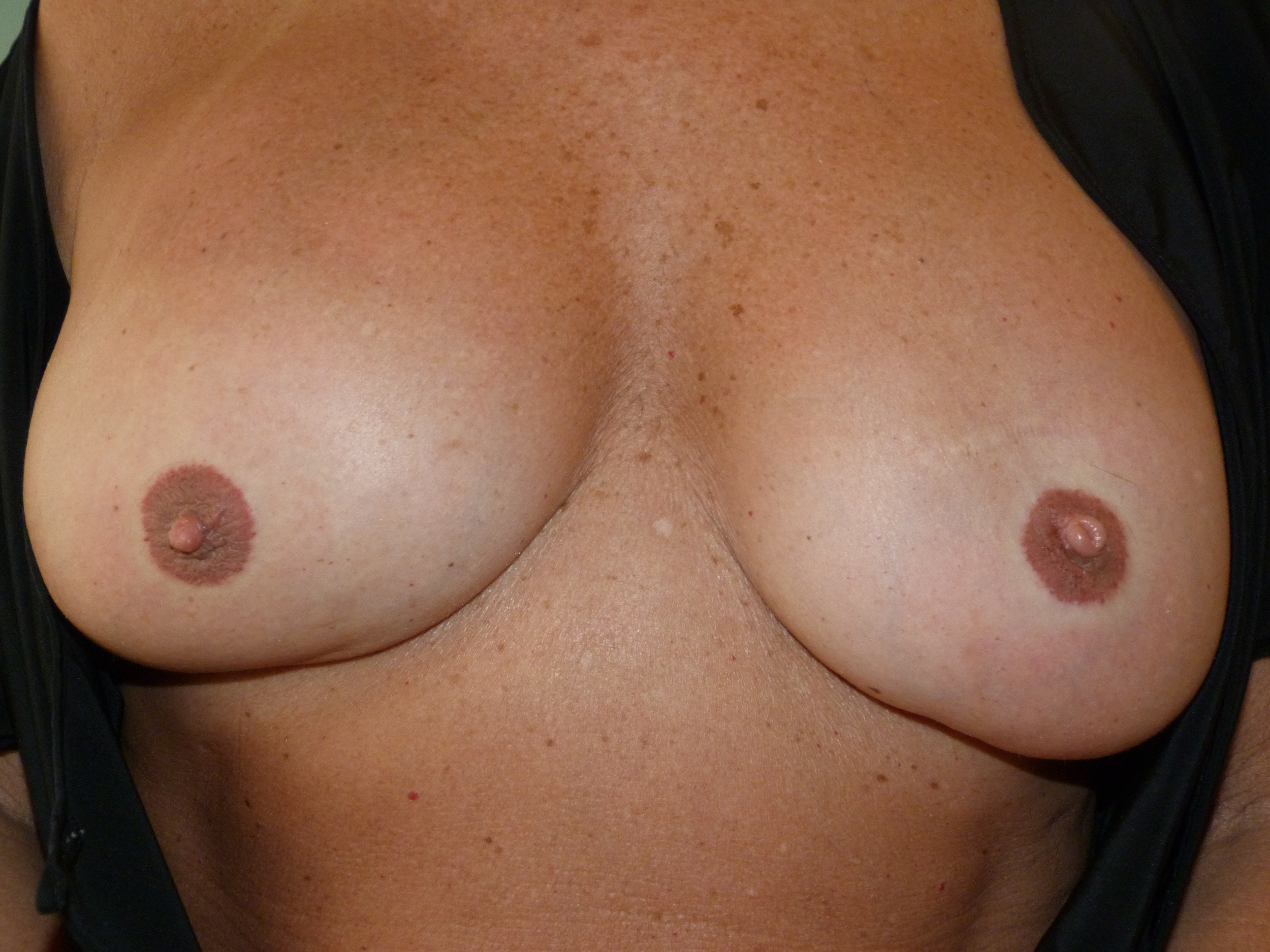 Areola 7 Immed After.JPG