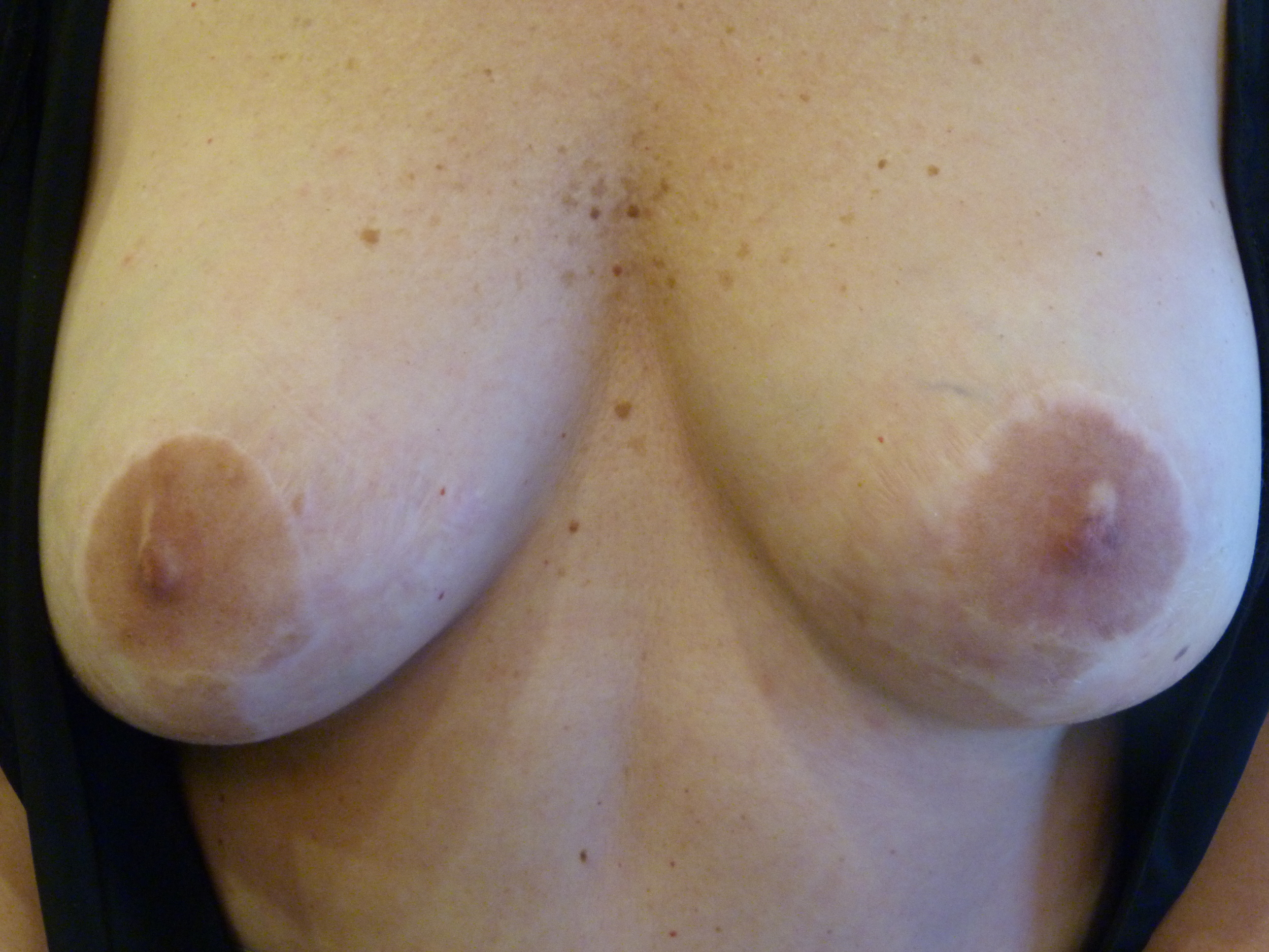 partial areola and scar blend 1 Before.JPG