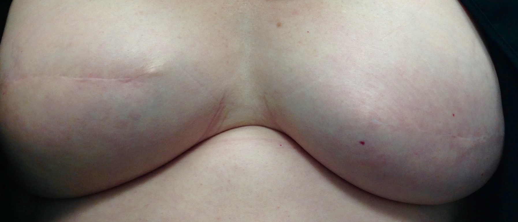 Before 3D areola 2.jpg