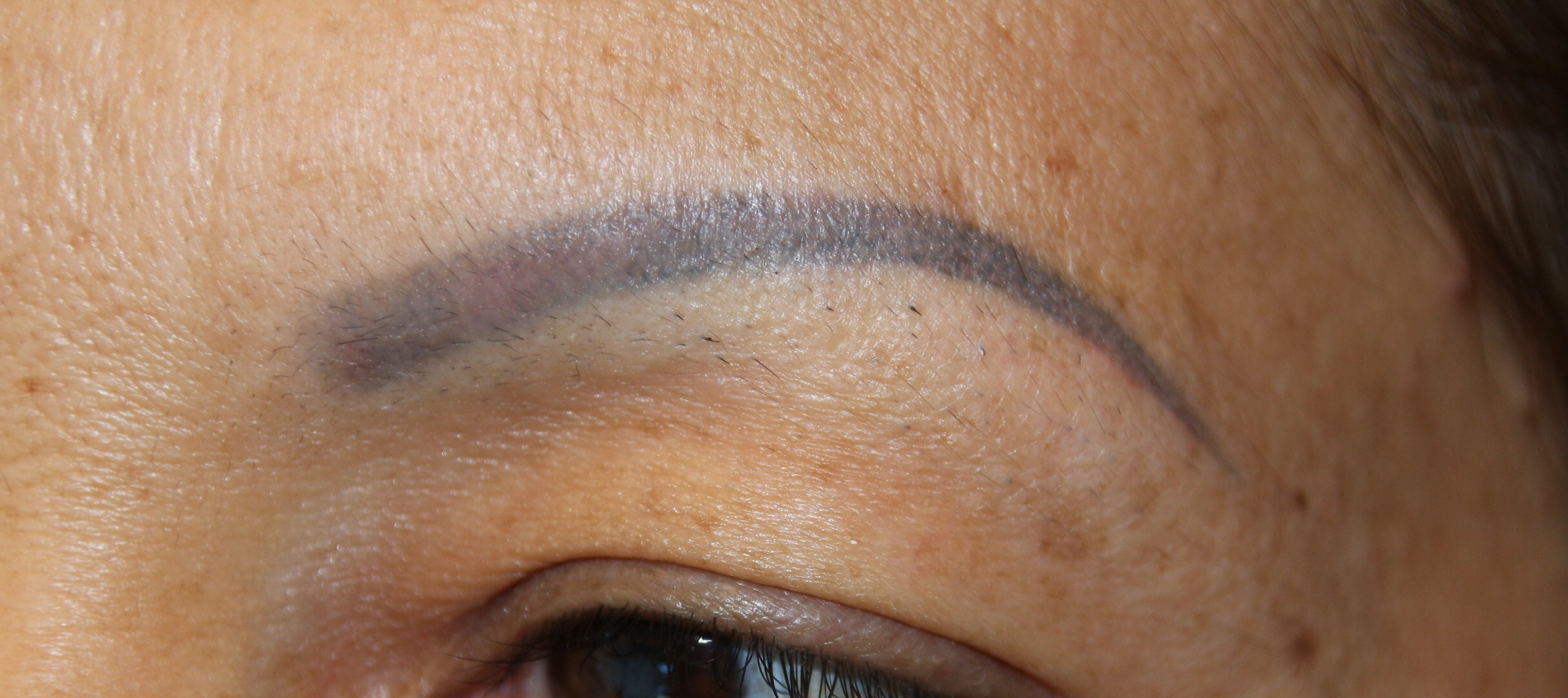 Client presented with faded but heavily saturated brow tattoo. The client's previous attempt with another technician at correcting the grey/blue tones that are typical of overly-dark colors in olive skin, led to traces of red pigment - so now the client had two-toned eyebrows.
