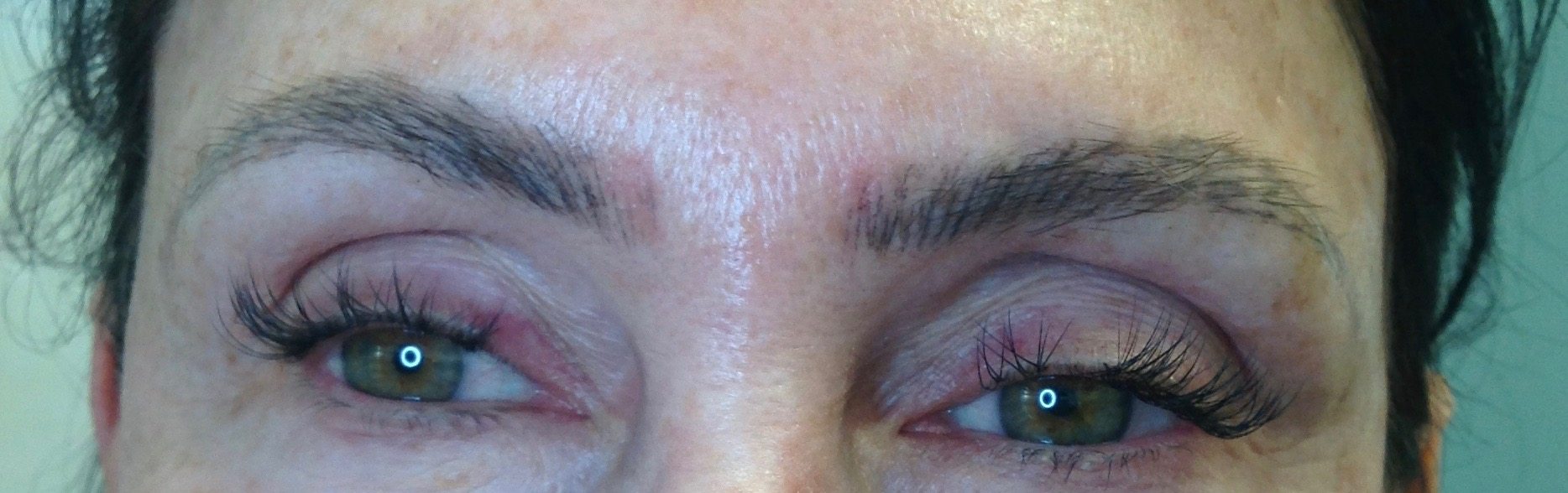 """BEFORE:  Microblading done elsewhere left this client's eyebrows too close together in the center, and overly dark and bold for the client's preference. The client attempted to """"scrub"""" the pigment out of the center during healing to prevent it from staying in the skin, thus the red areas. This could have left scarring, but fortunately her skin recovered with no adverse effects."""