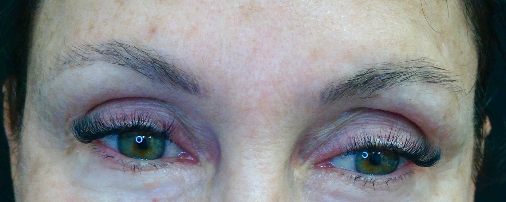 AFTER: One session of removal has lightened the pigment enough to re-design and recolor the brows in a more complimentary shape and color.