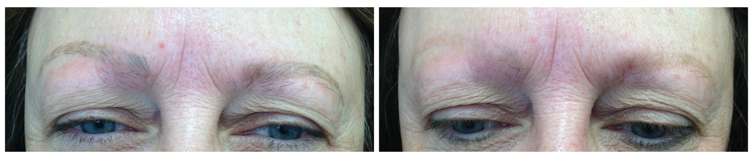 Before: Marked asymmetry with uneven saturation and poor retention of color from improperly executed microblading. After: One session of pigment removal. This client will need an additional treatment before correction of the brows in the proper symmetry, shape and color can be performed.