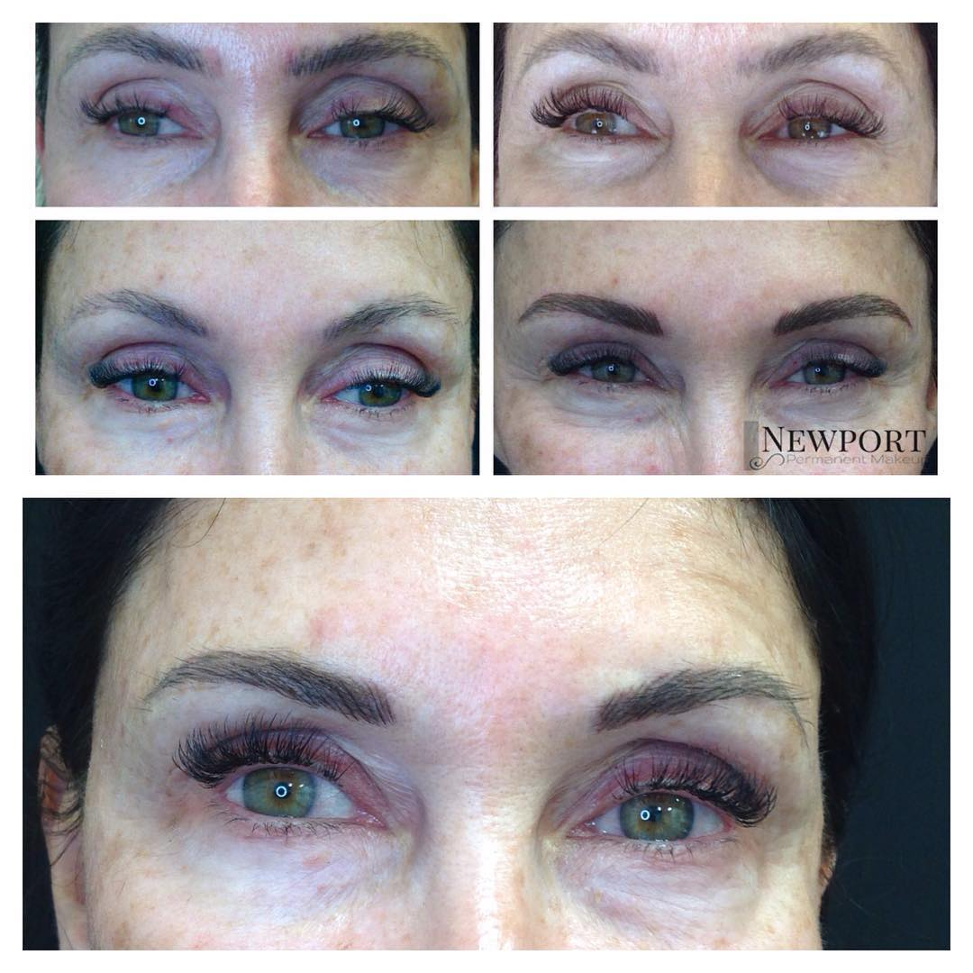 Removal of undesirable microblading - 2 sessions eight weeks apart, then recoloring with the proper color tone and shape.