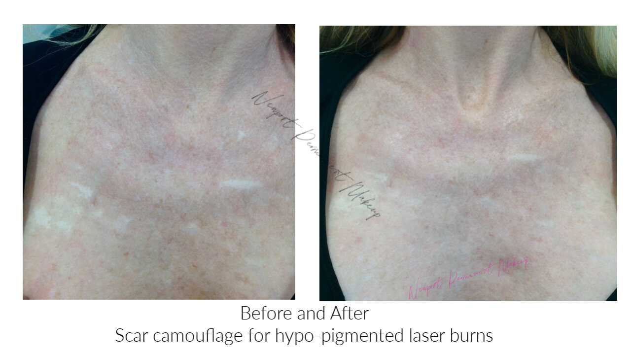 Scar Camouflage Newport Permanent Makeup