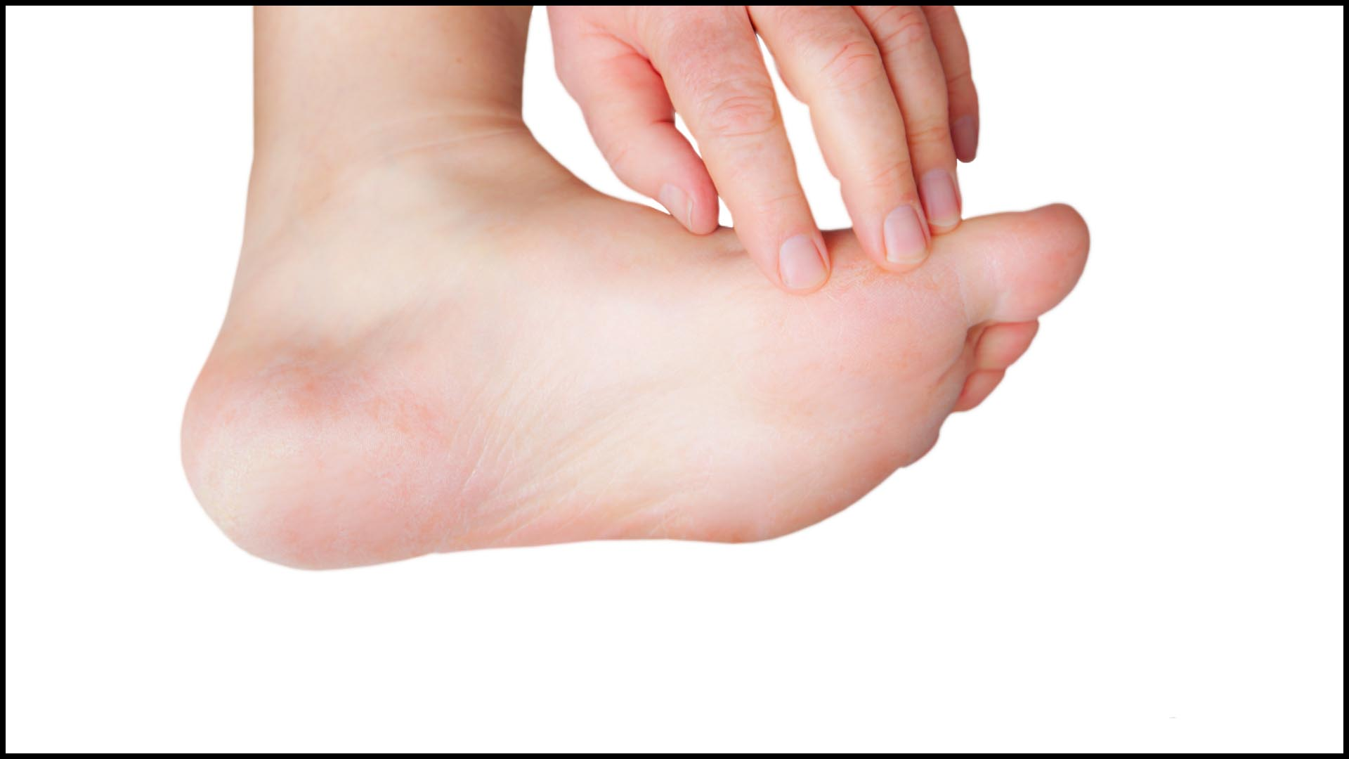 Warts And Skin Cancers Family Foot Care