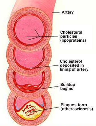 via http://www.manataka.org/images/Arteriosclerosis%202.jpg