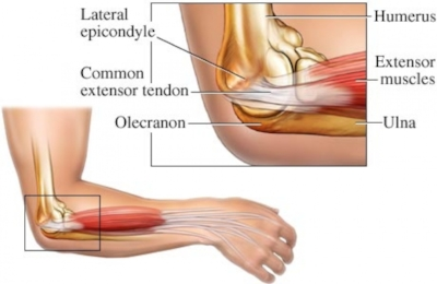 The usual area of pain for Tennis Elbow.