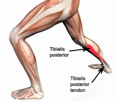 tibialis posterior.jpg