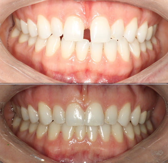 Patient treated with Invisalign to close space between front teeth in 8 mons.