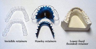 63623d4226d4204b9de4eab1f42cc65c--braces-dental.jpg