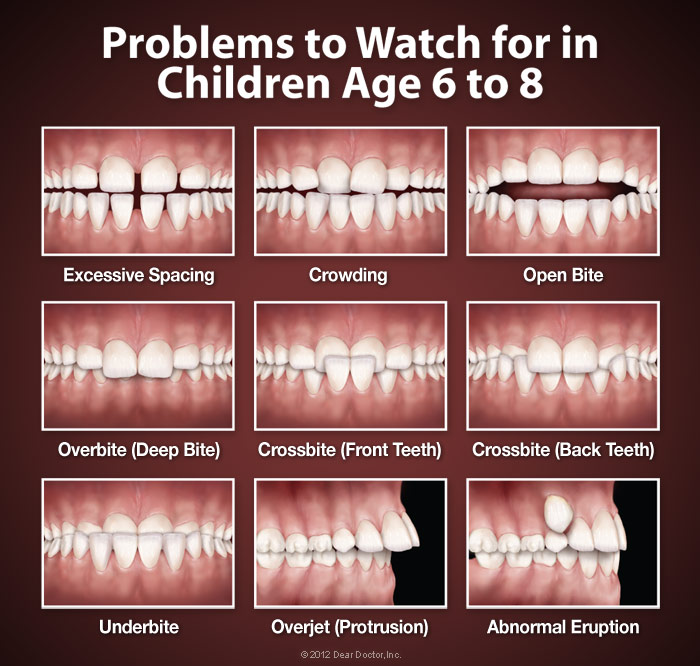 orthodontic-problems.jpg