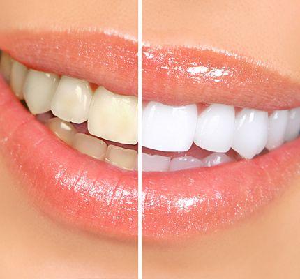 teeth-whitening-vancouver.jpg