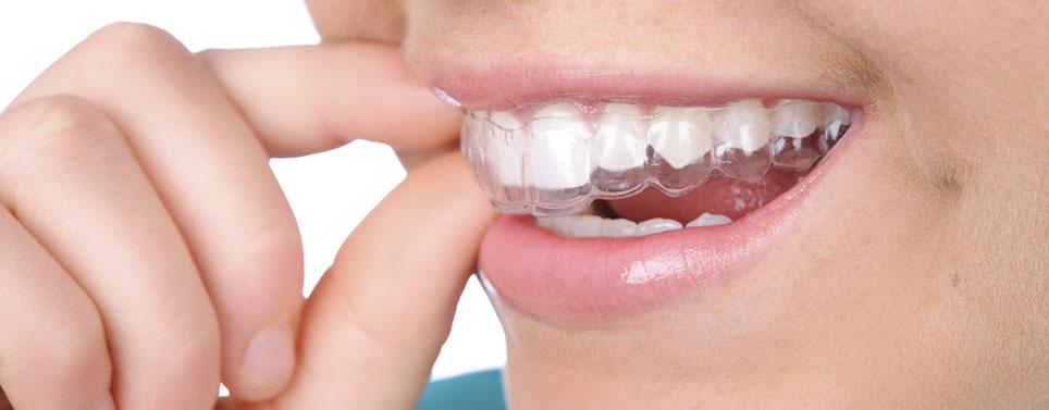 invisalign-short-term-adult-orthodontics.jpg