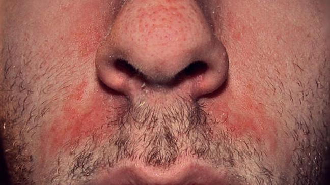 seborrheic dermatitis.jpeg