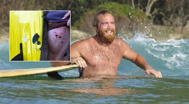 """Jadey boy, """"attacked"""" by a shark. Still surfing and still anti-shark nets."""