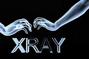 Xray Hands 6