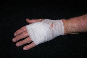 handy-injury
