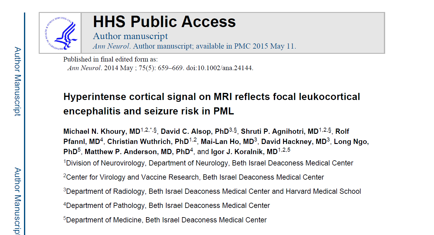 Hyperintense cortical signal on MRI reflects focal leukocortical encephalitis and seizure risk in PML