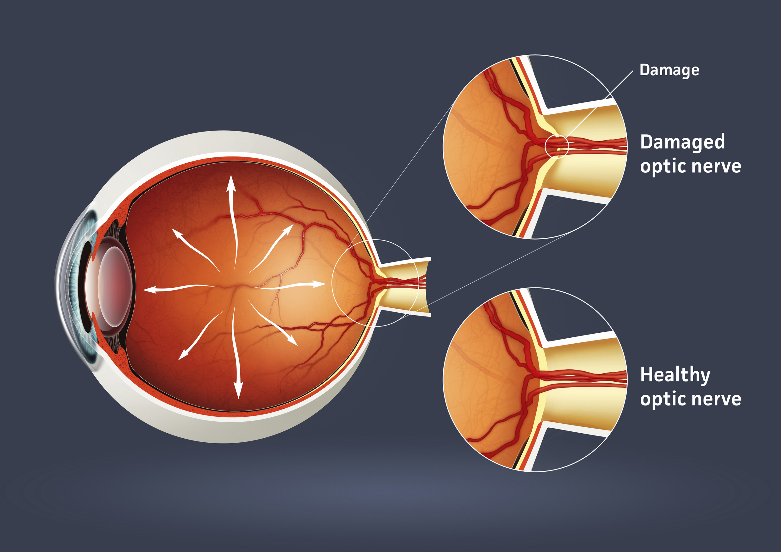 Glaucoma-treatment-by-Peter-Baranyovits