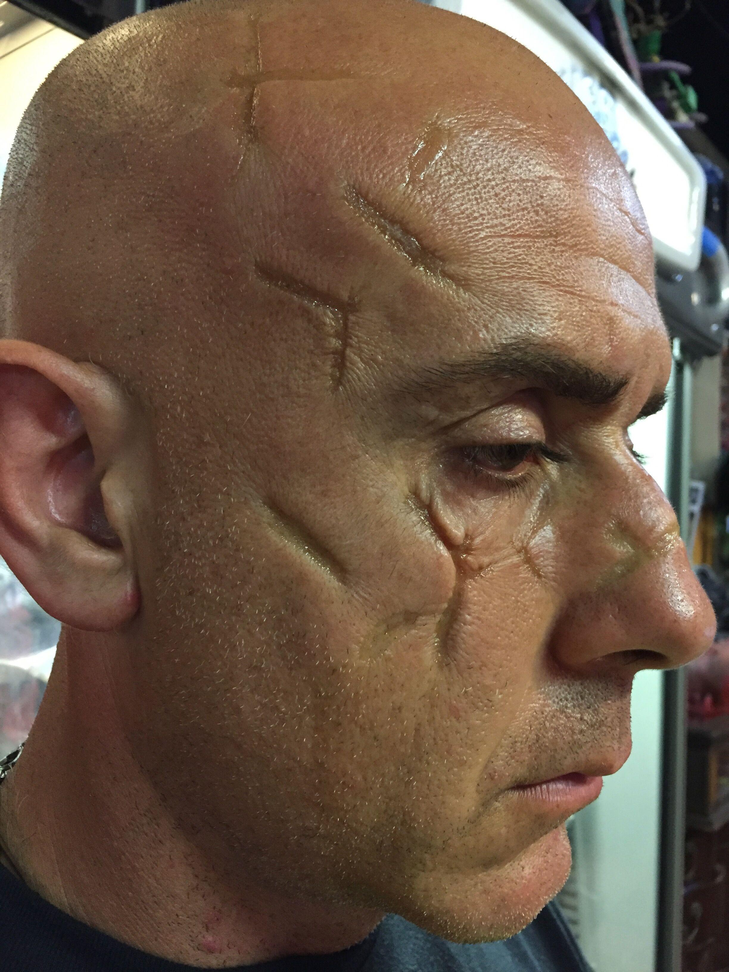 Shane portfolio scars.jpeg