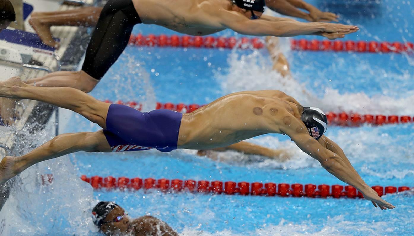 Michael Phelps' purple spots demystified by the WIN Team!
