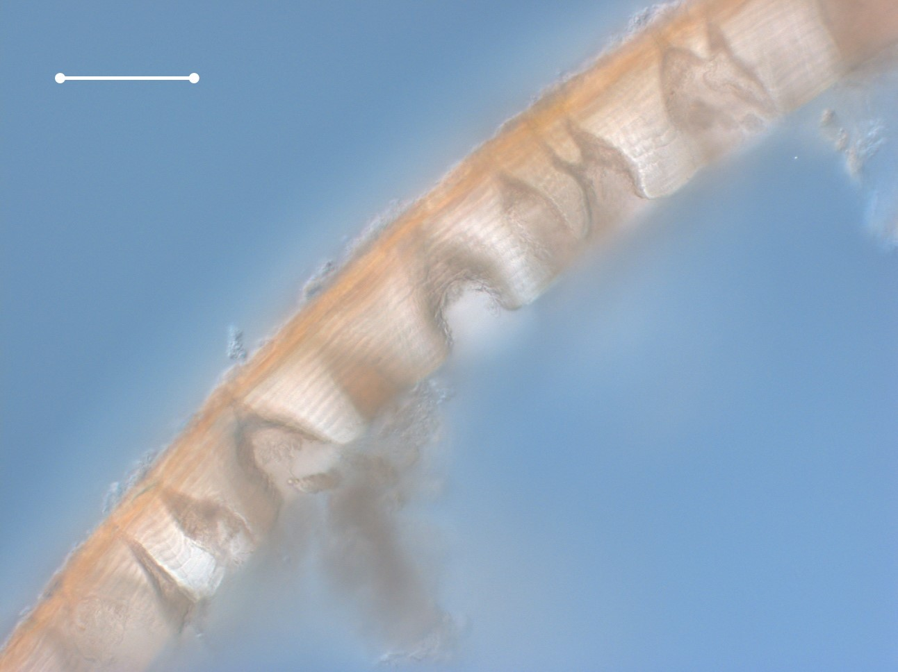 Cross-section of the cuticle of a large  Colossendeis  showing the many pores extending through the cuticle.  Specimen viewed with differential interference contrast (DIC) optics at 20x.  Scale bar = 100 microns.