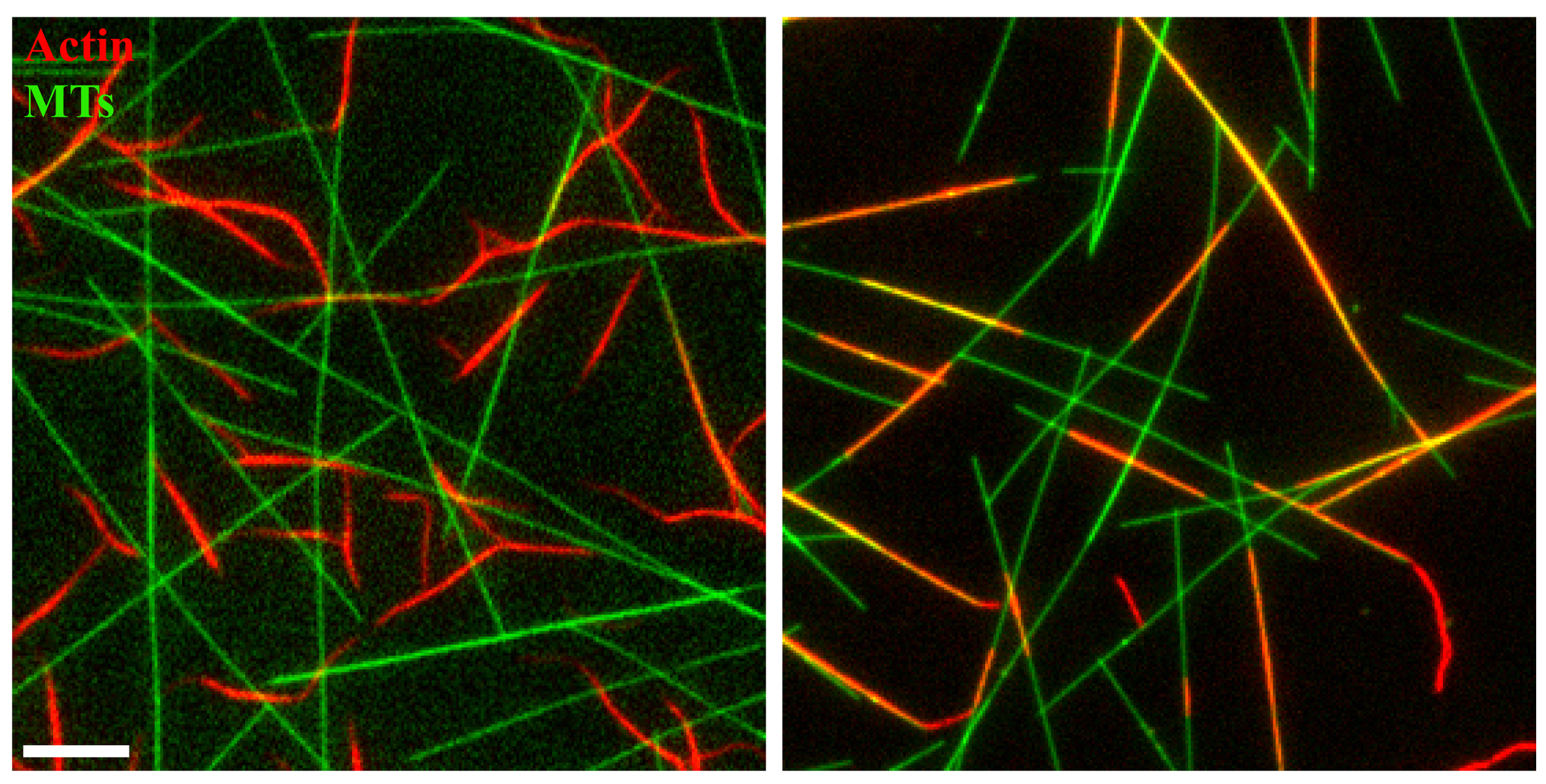 Fluorescent labelling of actin and microtubules with fascin on the left and tau on the right.