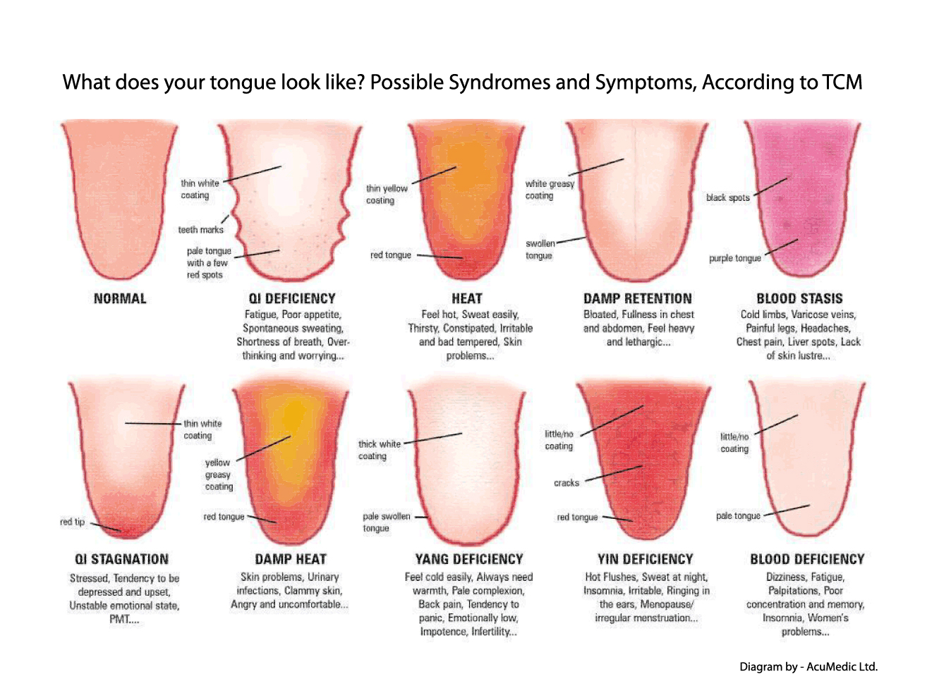 tongue diagnosis tcm