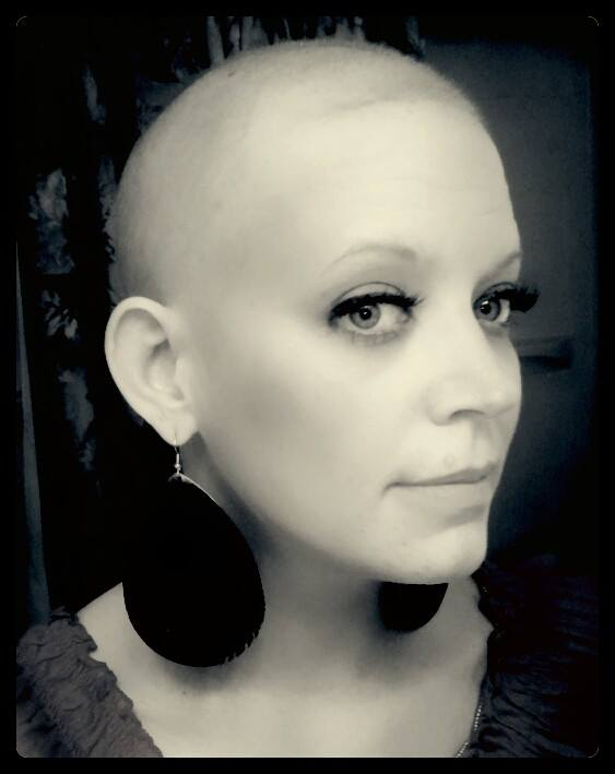 Missy, having lost her hair during cancer treatments