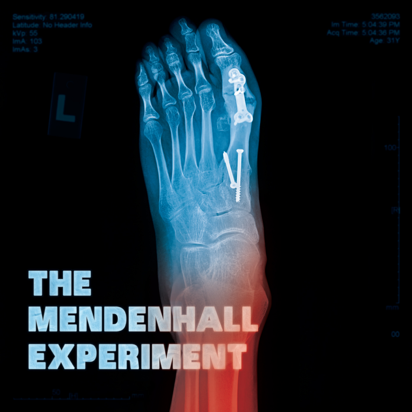 The Mendenhall Experiment