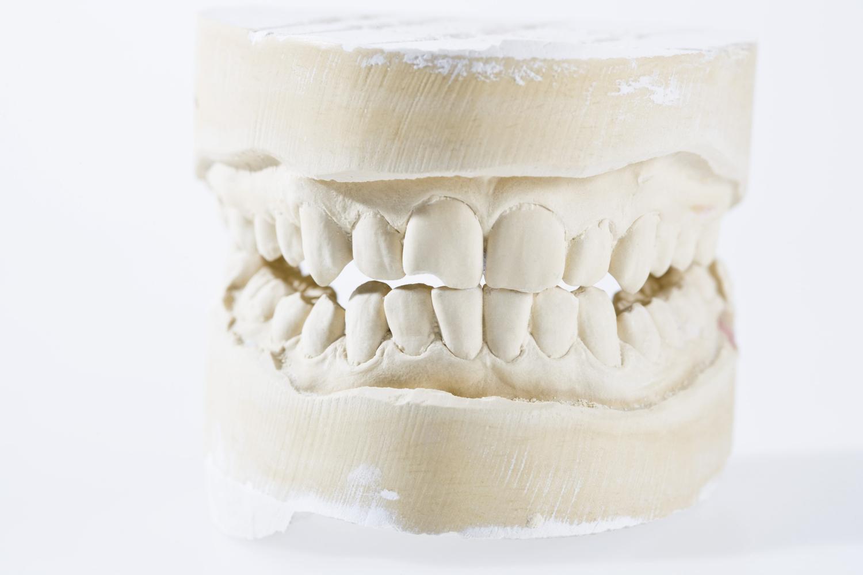 teeth2.jpeg