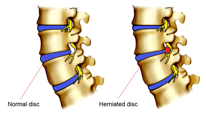 Disc Herniation and Nerve Pressure  https://khanhtrinhvn.com/wp-content/uploads/2015/02/herniated-disc-700x400.jpg