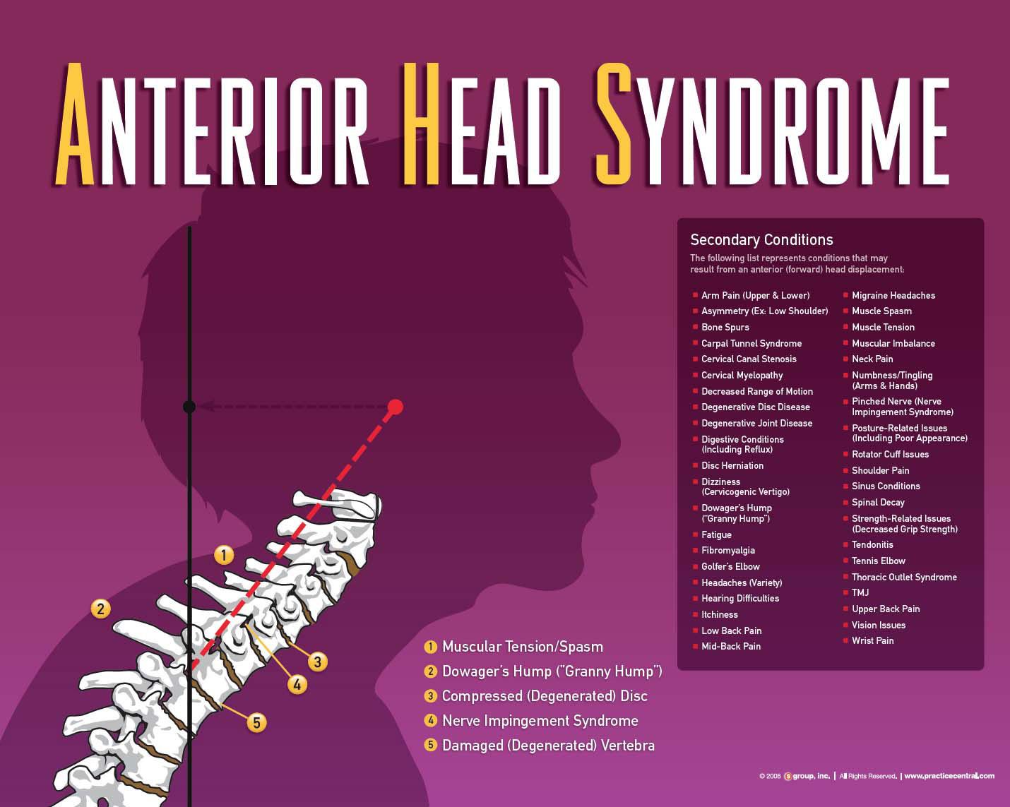 Anterior Head Posture