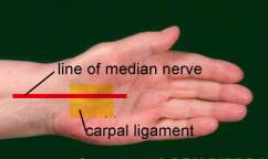 The Carpal ligament