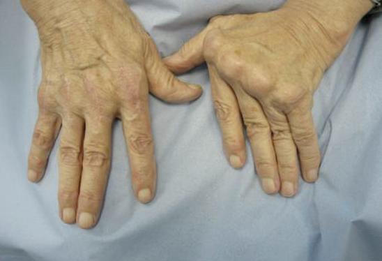 Rheumatoid arthritis can make the hand unusable.