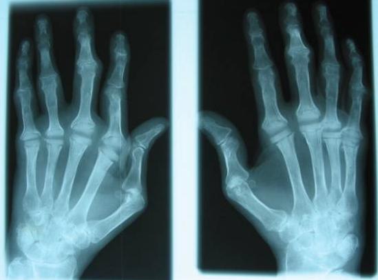 Rheumatoid arthritis xray
