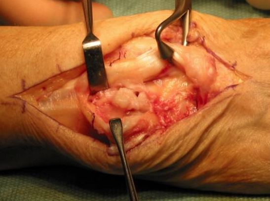 Ruptured tendon in hand surgery