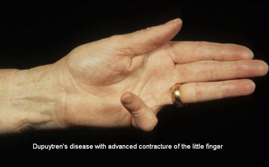 Dupuytren's Disease with advanced contracture of the little finger.