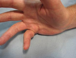 Dupuytren's Disease in the hand
