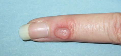 A mucous cyst on a finger